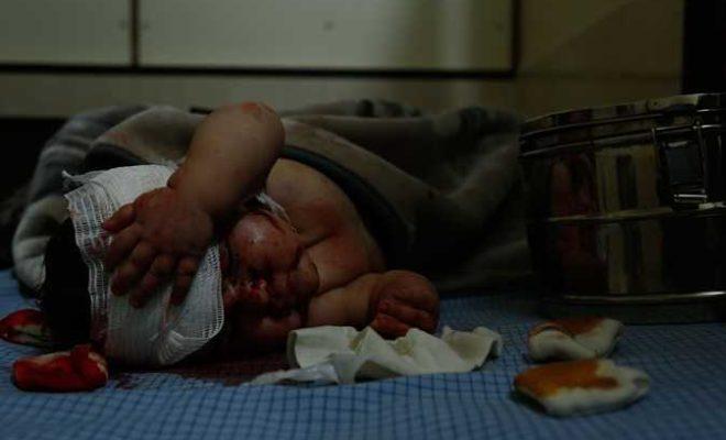 أكثر من 30 طفلا حصيلة قتلى الأطفال في الغوطة الشرقية منذ بداية العام
